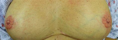 nipple tattoo reconstruction pictures alternative tattoo options after masectomy