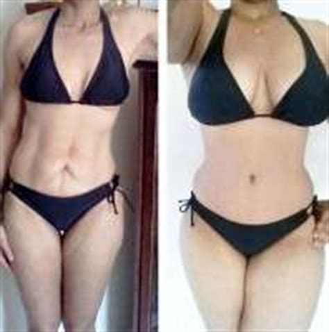 does insurance cover tummy tuck after c section tummy tuck alternative laser 187 tummy tuck information