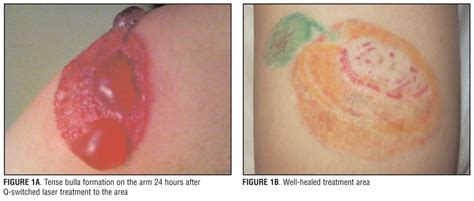 how to remove a tattoo without laser treatment of large bulla formation after removal