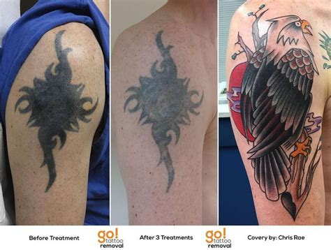 can you tattoo over a removed tattoo 98 best removal to cover up images on