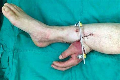 Jam Tangan Ajaib cangkok tangan ke bagian kaki transplantasi organ tubuh