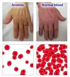 anemia skin color wellness lab health info what is anemia