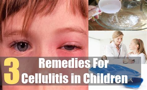 Home Remedies For Cellulitis by Treatment For Cellulite Cellulitis In Children Home