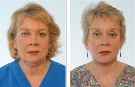 faces of 55 year olds dr paul vitenas jr before and after houston facelift photos