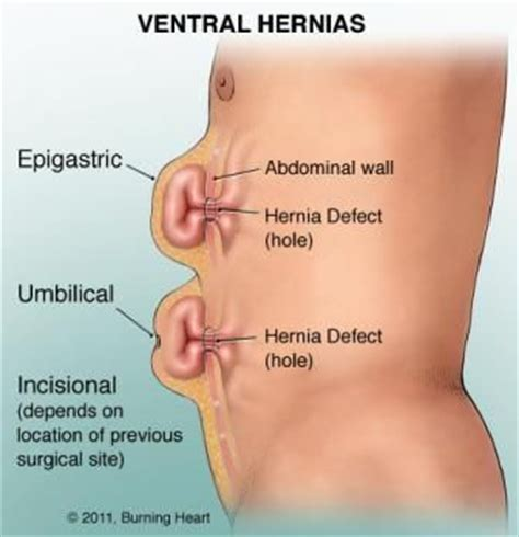 about your hernia inguinal hernia symptoms causes hernia causes symptoms diagnosis treatment and ongoing