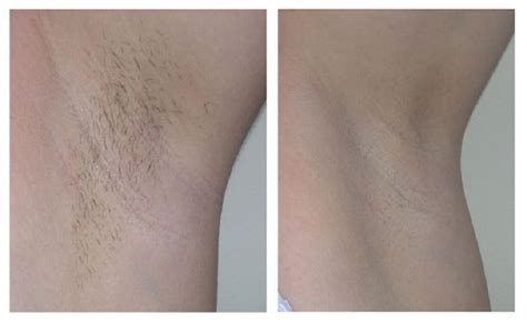male genital hair removal before after photos hair removal before after photos laser hair removal