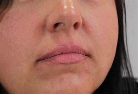 lip liner tattoo gone wrong permanent makeup disasters makeup geek