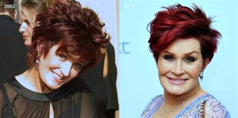 celebrities who have had a neck lift sharon osbourne plastic surgery before after bing images