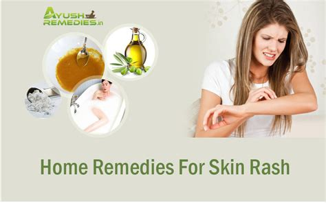8 best home remedies for skin rashes herbal and