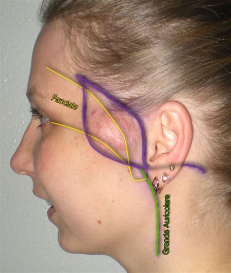 pillola mal di testa angioma e malformazioni vascolari distretto maxillo