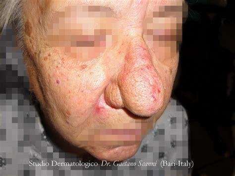 herpes interno naso rosacea dr gaetano scanni