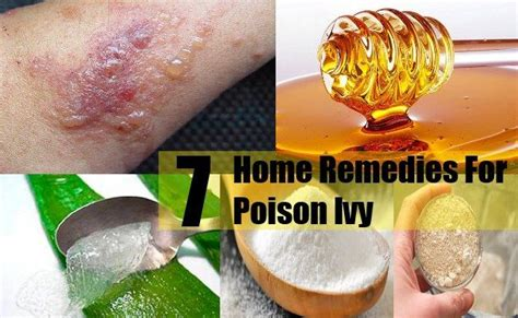 8 Wacky Treatments by 7 Home Remedies For Poison Hacks