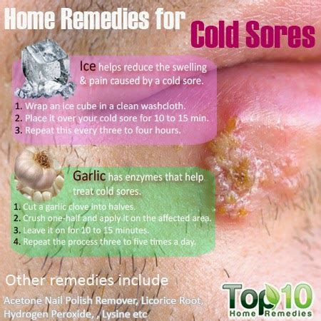 7 Remedies To Treat A Cold by Home Remedies For Cold Sores Mzizi Mkavu