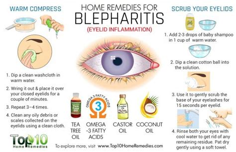 home remedies for blepharitis eyelid inflammation top