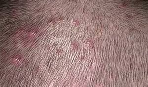 does hair bumps hurt bumps on scalp that itch and hurt iytmed com