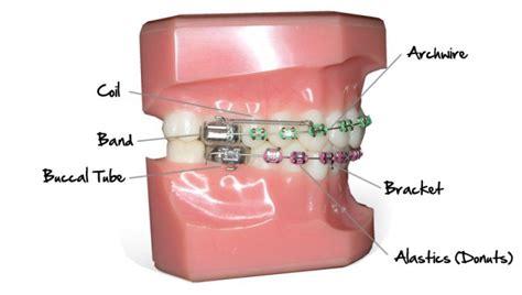 how do braces work healthrow net