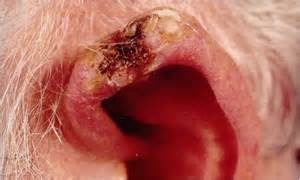 skin cancer skin cancer on ear