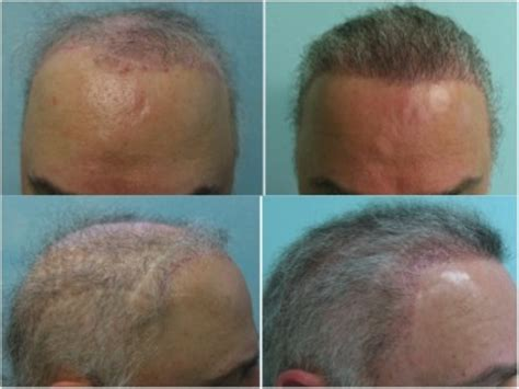 transplant hair from chest to head body hair to head transplant with ugraft fue technology
