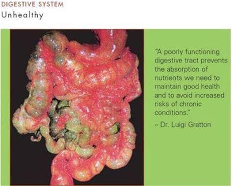 Obat Maag N Asam Lambung penyakit maag asam lambung dan herbal untuk mengatasinya