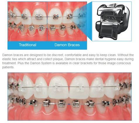 Biaya Pemutihan Gigi Di Jakarta Smile kawat gigi teknologi terbaru dengan damon system audy dental