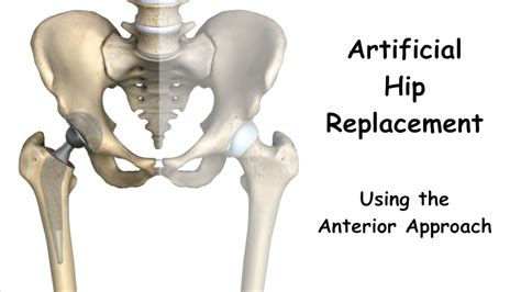 hip replacement benefits of hip replacement using the direct anterior approach