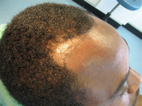 Hairline Restoration For Black Men | afro hair transplant westminster clinic