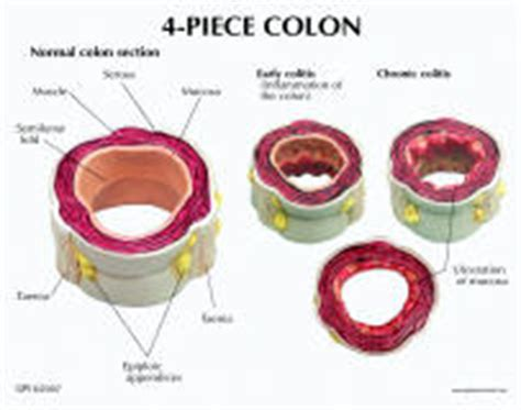 colon sections colon models rectum models