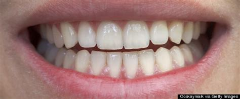 the 5 dental problems for 50