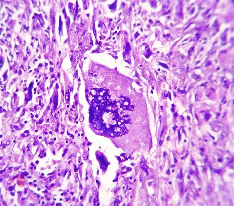 Glioblastoma Pathology Outlines by Cns Tumor Glioblastoma Multiforme