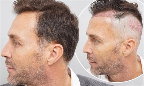 reclining hairline ashley ward flaunts the results of his hair transplant