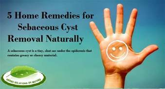 5 home remedies for sebaceous cyst removal naturally