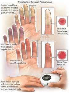 dusky skin color nursing 25 best ideas about raynaud s phenomenon on