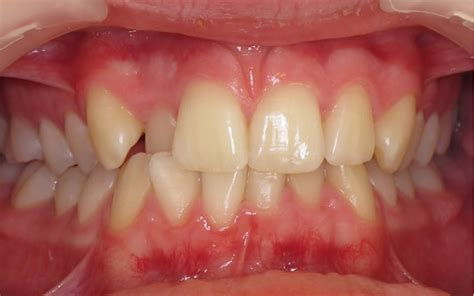 invisible braces  wickford  foxhall dental