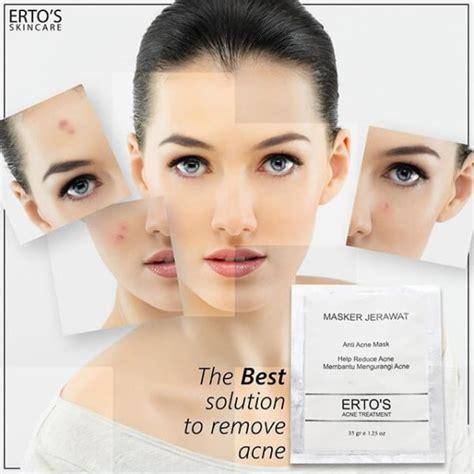 Anti Acne Mask By Ertos Masker Ertos Original ertos anti acne mask bpom mencegah menghilangkan