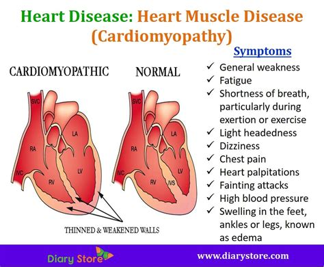chest pain and light headed heart diseases types symptoms risk factors prevention