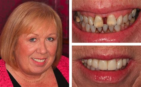 smile makeovers gallery  chichester dentists