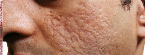 scars treatment philadelphia laser scar removal pa