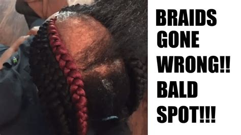 braids bald spot natural hair horror story getting braids gone wrong i m