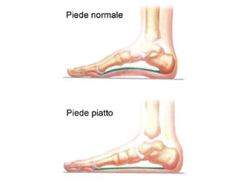 dolore alla pianta piede interna chirurgia piede e della caviglia casa di cura san