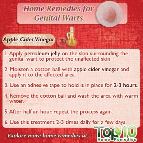 home remedies for warts top 10 home remedies