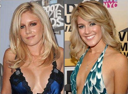 Heidi Got A New Nose To Go With by Heidi Montag Nose Before And After Deviated Septum