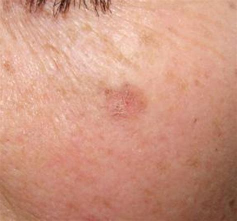u light treatment for actinic keratosis actinic keratoses causes symptoms treatment actinic