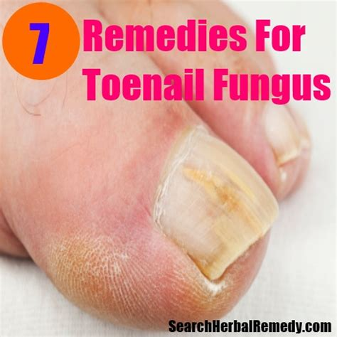 cures for foot fungus wallpaper
