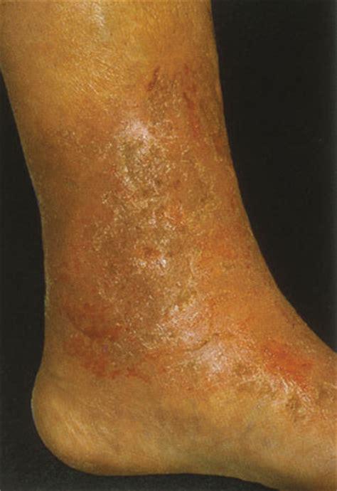 Leg Diseases Pictures