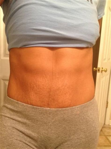 Tummy Tuck Bad And by Mini Tummy Tuck Pictures Before And After Stretch Marks