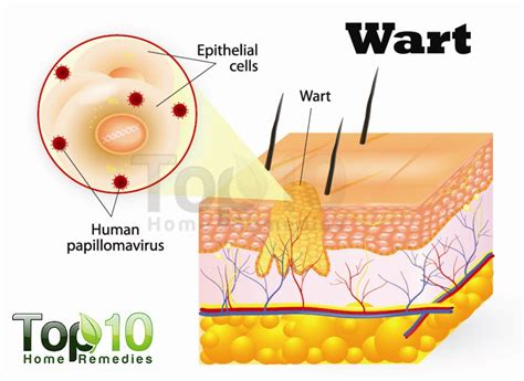 home remedies for planters warts home remedies for warts top 10 home remedies
