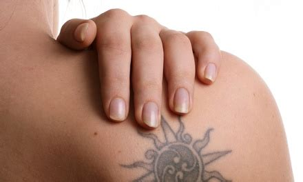 tattoo removal groupon leeds newskin tattoo removal up to 70 off swansea ma groupon