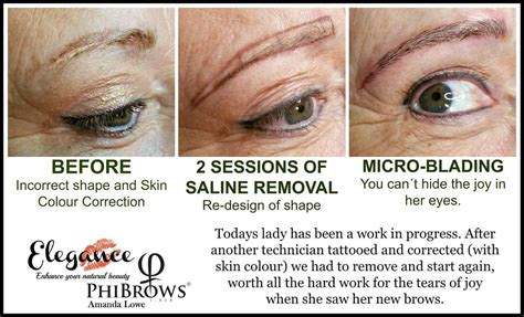 saline eyebrow tattoo removal saline solution to remove permanent makeup mugeek vidalondon