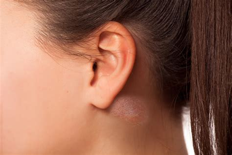 my ears are not like yours books 9 causes and treatments for lump ear