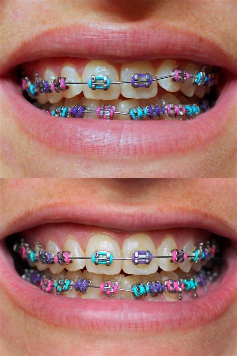 color braces purple pink blue braces colors pinterest pink